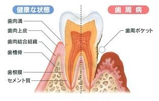歯周病画像くどう歯科クリニック