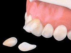 歯のすき間