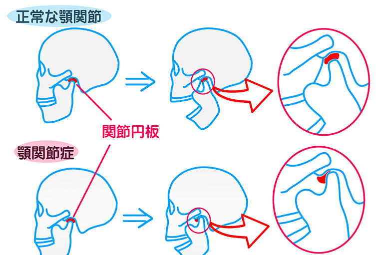 口腔外科(親知らず・顎関節症治療)